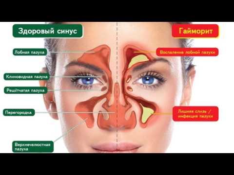 Гайморит - симптомы, причины, осложнения. Лечение