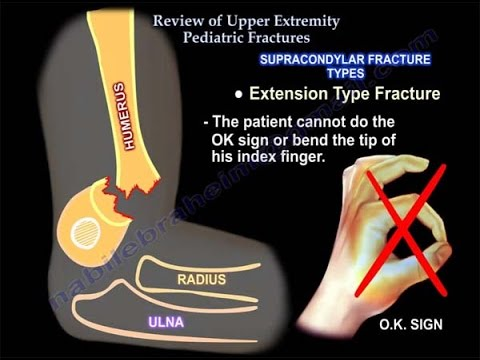 upper limb fractures -1- clavicle fracture
