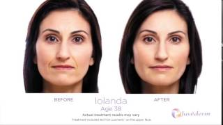 Understanding Botox & Softlift Combination | Dr. Roz Kamani Medical Skin Care Clinic Vancouver BC