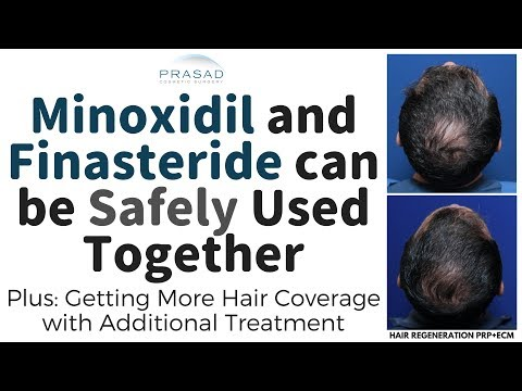 how-minoxidil-and-finasteride-can-be-used-safely-together,-and-further-treatment-for-thicker-hair