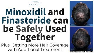 How Minoxidil and Finasteride can be Used Safely Together, and Further Treatment for Thicker Hair