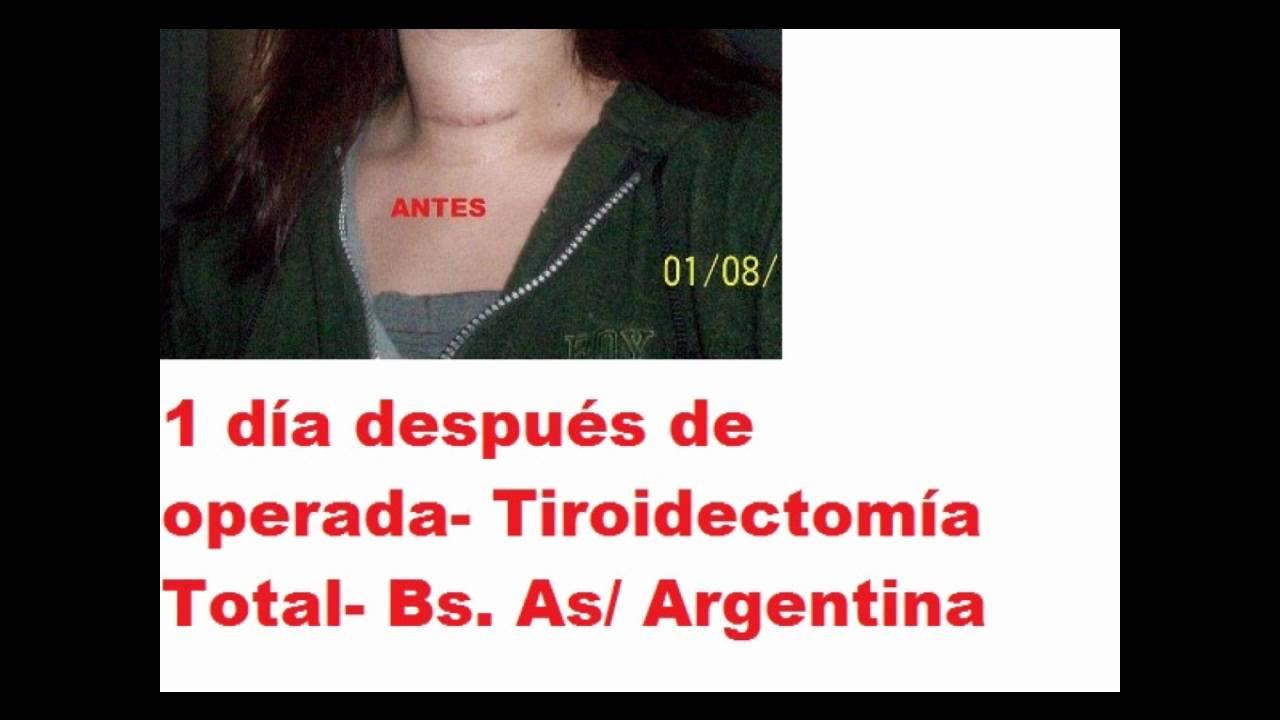 Cirugía de Tiroides (Cicatriz de tiroidectomía total