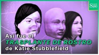 Así fue el trasplante de rostro de Katie Stubblefield   Salud180