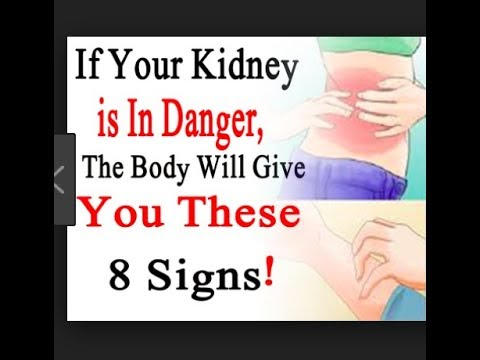 Warning Signs na Sira ang Kidneys o Bato - ni Doc Willie at Liza Ong #464