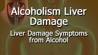 Alcoholism Liver Damage
