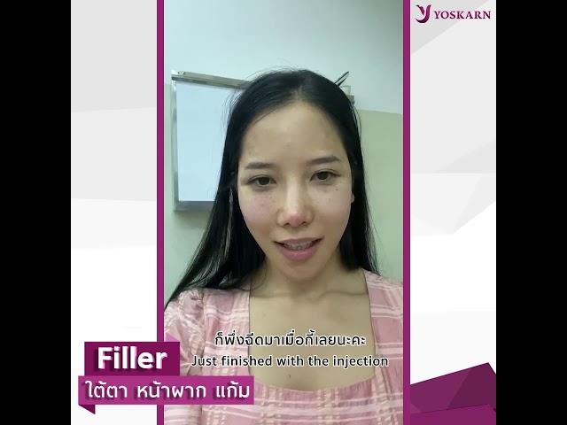 คุณเพชรสมร สาวลาว รีวิวแบบน่ารัก ฉีดFiller ไม่เจ็บ #Filler