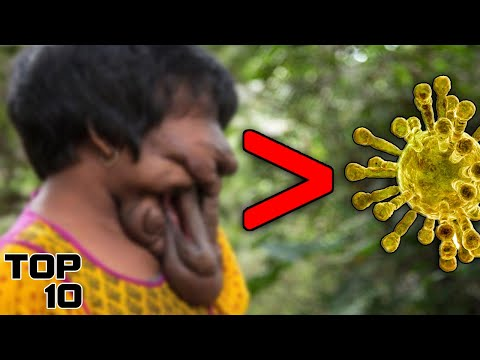 Top 10 Scary Diseases Way Worse Than Corono Virus