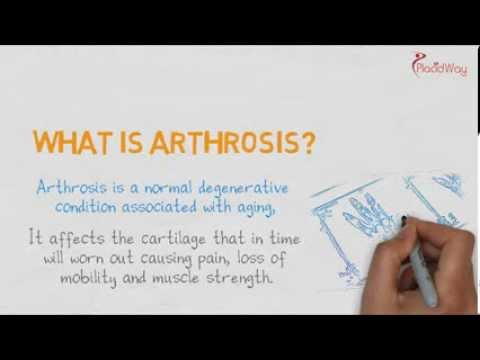 Hospitals for Arthrosis Worldwide - Caremondo