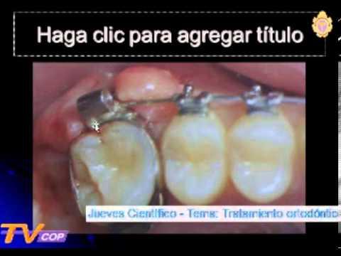 Ortodoncia en adultos - Dra. Nelly Huasco