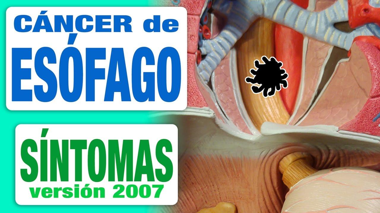 cancer de esofago causas e sintomas