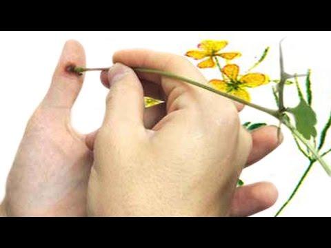Чистотел - применение. Народное лечение чистотелом