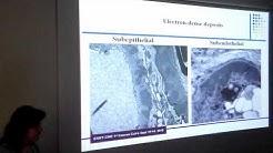 hqdefault - Kidney Biopsy Electron Microscopy