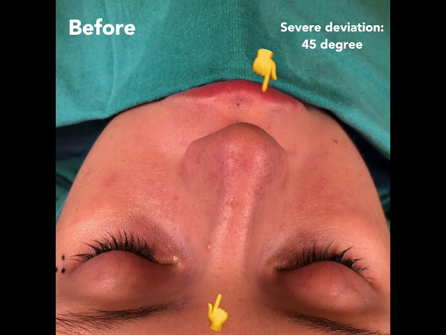 Correction of a Severly Crooked Nose by Closed Atraumatic Rhinoplasty