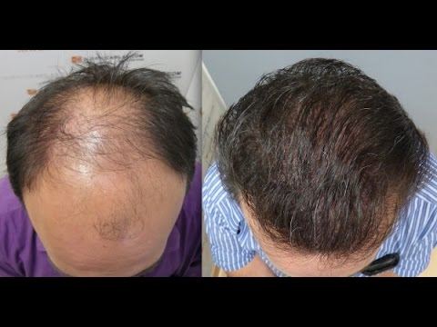 5253 FU's. Hair Transplant by FUE Technique. Advanced alopecia. Injertocapilar. 815/2012