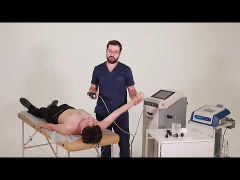 Болит плечо при отведении назад