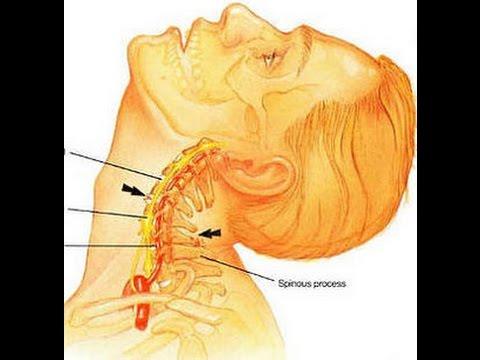 упражнения при шейном и грудном остеохондрозе