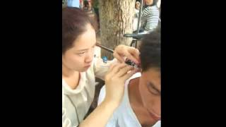 Chinese Ear Cleaning (206) Helping a man to remove a large piece of ear wax