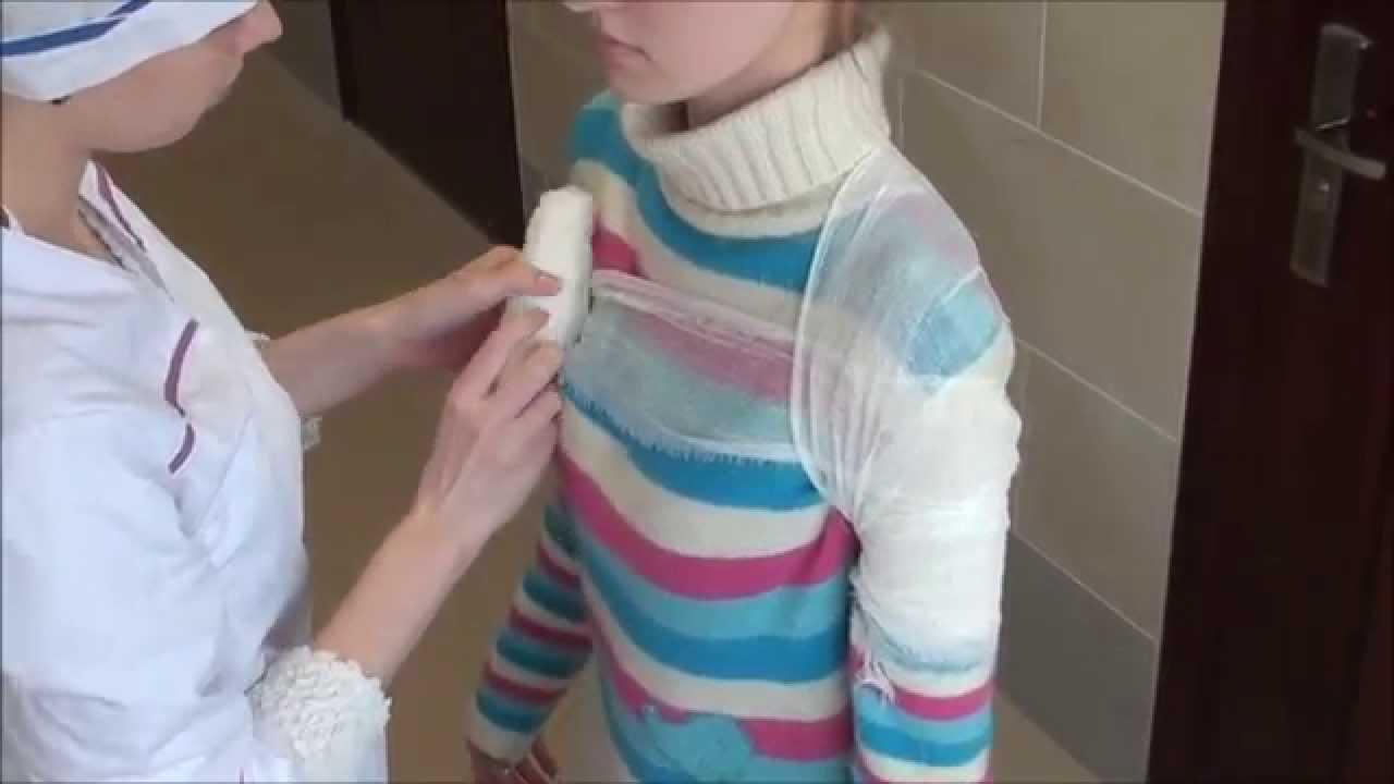 Повязка плечевой сустав видео артроз плечевых суставов симптомы
