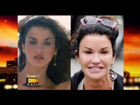 Celebrity Plastic Surgeries -- Before And After!