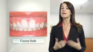 Glendora Cosmetic Dentist | Cosmetic Dentistry Thumbnail