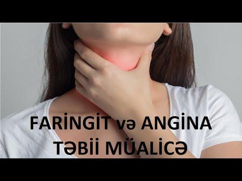 faringit və xroniki faringit