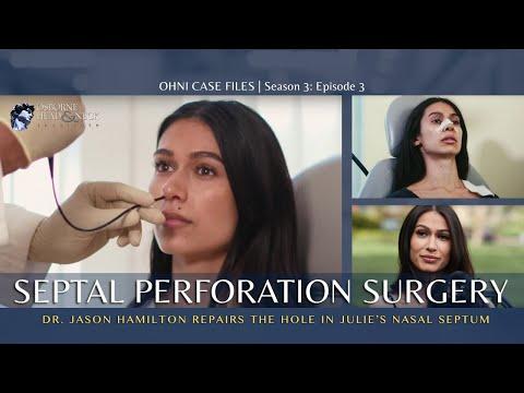 Woman has SEPTAL PERFORATION REPAIR SURGERY