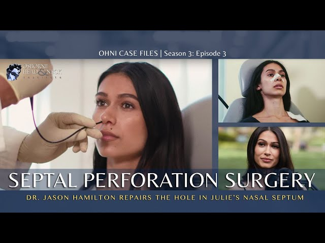 Septal Perforation Repair Surgery for Singer with Hole in Nasal Septum by Dr. Jason S. Hamilton