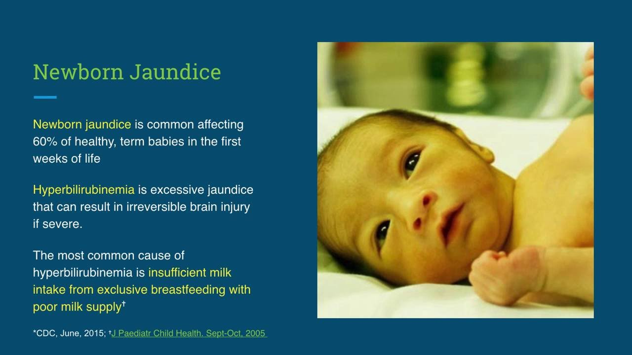 Newborn Babies Jaundice Treatment Why Fed Is Best For Newborn Jaundice A Parent Guide Fed