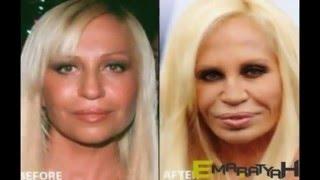 فضائح المشاهير Cosmetic surgery of Fame