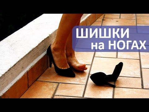 Шишки на ногах. Как убрать шишки на ногах. Травматолог ортопед Армен Петросян.