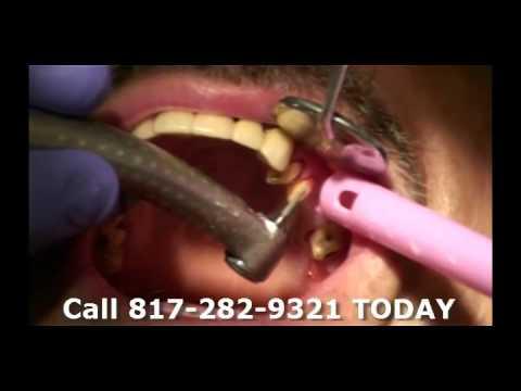 Complete Video Of Doctor Kyle Eberlein DDS Removing And Replacing Broken Dental Bridge