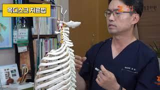 [목디스크] 치료법&예방법