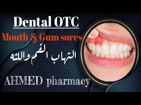 سلسله (Dental OTC) لمعرفه كيفيه علاج حالات الفم و الاسنان في الصيدليه