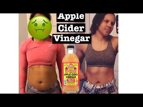 weight-loss-||-apple-cider-vinegar-||