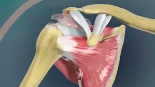 Вывих Плеча? Новейший Метод Лечения Плечевого Сустава