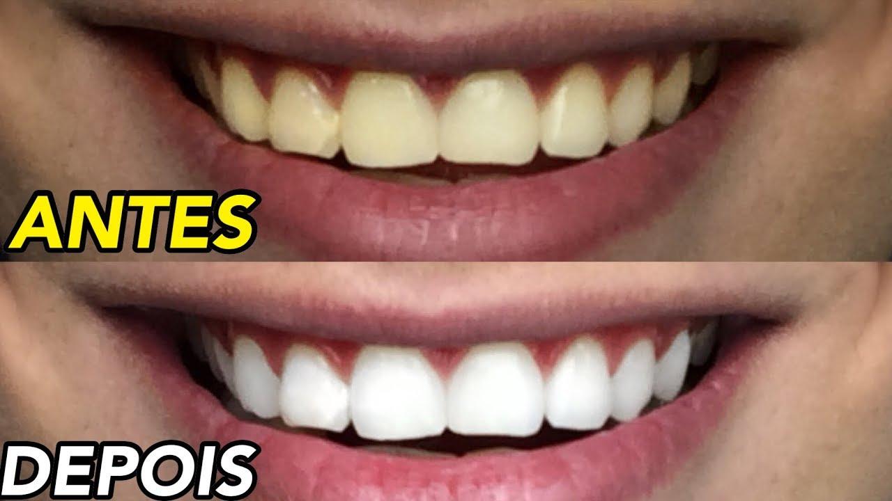 Como Clarear Os Dentes Em Casa Youtube