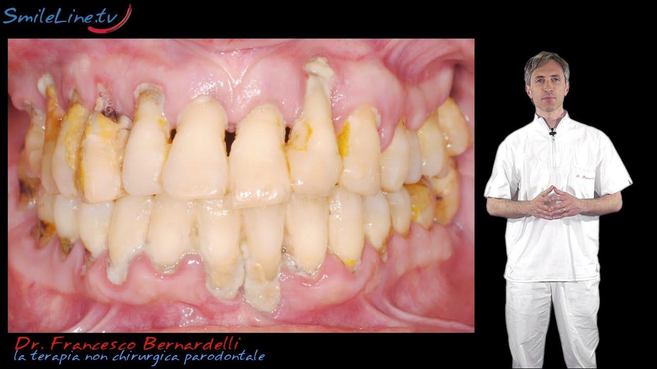denti bianchi di dieta sbiancamento delle uova