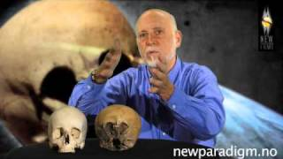 Lloyd Pye - Starchild Skull Interview 2010 - Part 6/6