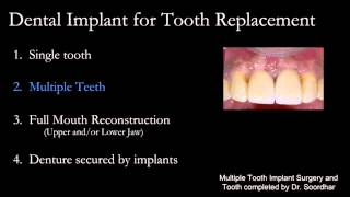 OASIS DENTAL - Milton Implant Dentist & Dental Clinic - 905-876-2747 - www.oasisdentalmilton.com Thumbnail
