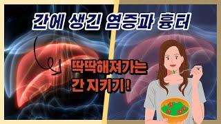 [자연치유] 간암만큼 위험한 간경화 증상 및 식이요법