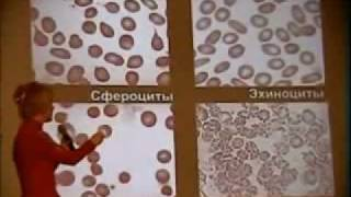 Бутакова О.А. Кровь-2.