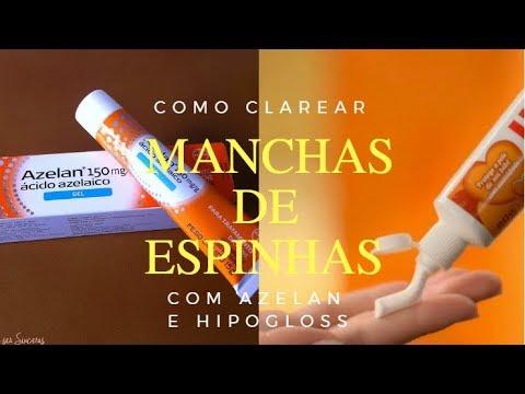 COMO CLAREAR MANCHAS DE ESPINHAS COM AZELAN E HIPOGLOS - QUASE PRONTA
