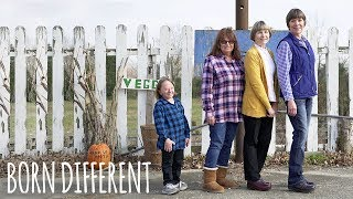 My Rare Dwarfism Makes Me One In 500 Million | BORN DIFFERENT