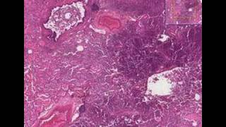Histopathology Lung --Bronchopneumonia with micro-abscesses