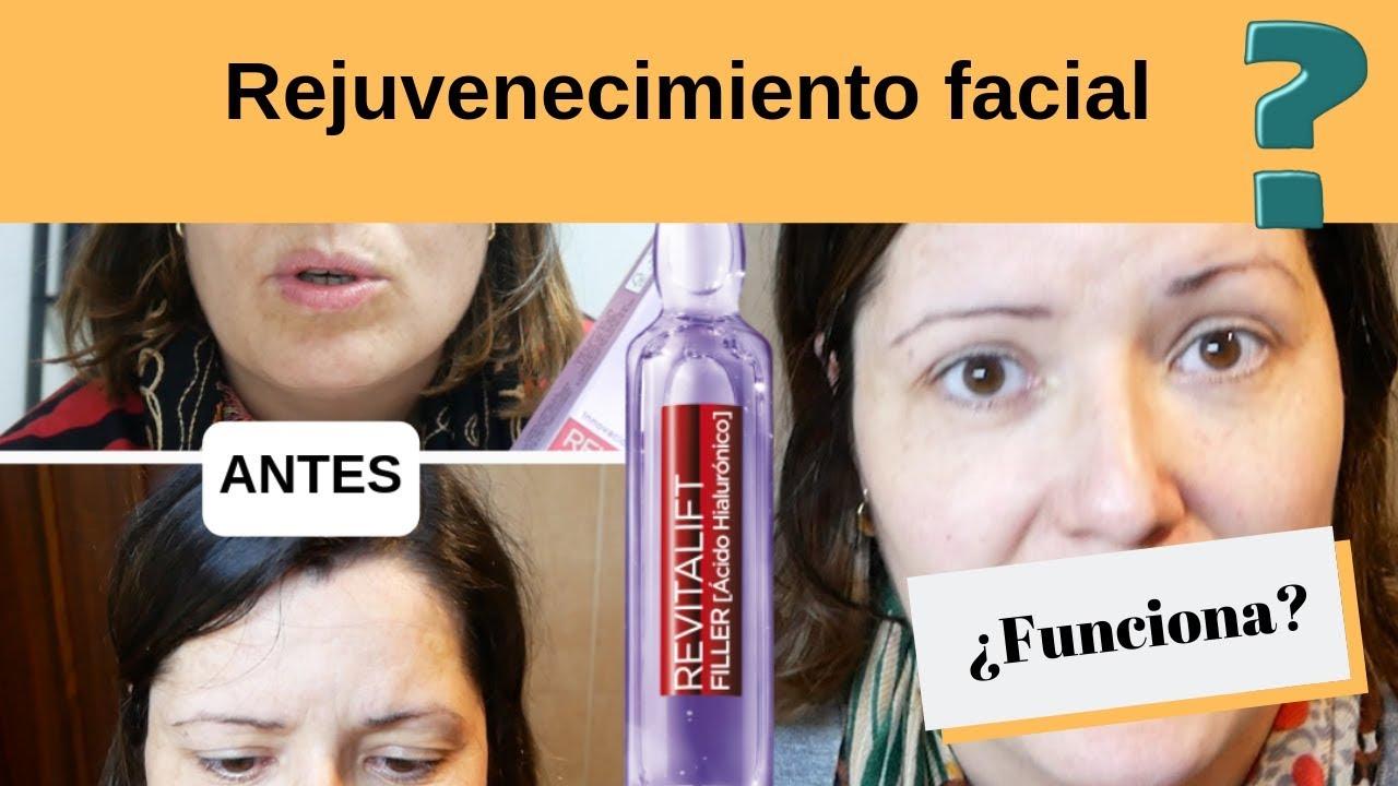 Revitalift Filler Funciona Mujeresexpress Youtube