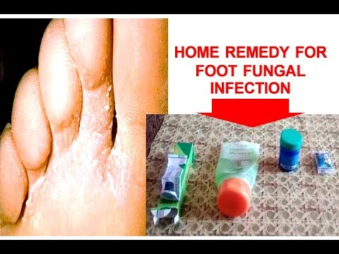 Home remedy for foot fungal infection