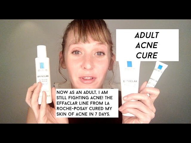 Adult Acne Solutions