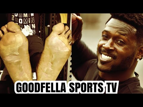 Jonny Hartwell - ANTONIO BROWN: Frostbite? No! This Is REAL Reason His Feet Are Messed Up
