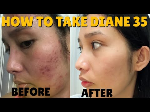 diane-35:-curing-my-acne-+-how-to-take-it-properly-|-galy-gascon