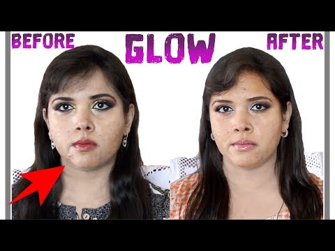Pixi Glow Collection BEFORE & AFTER RESULTS ON ACNE